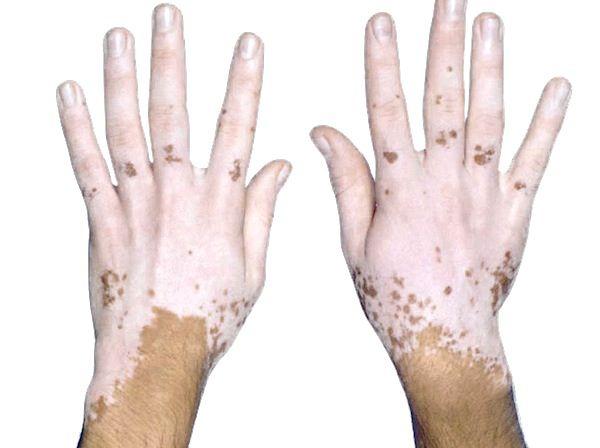 vitiligo-tiene-cura-se-puede-curar-el-vitiligo