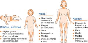 biodescodificacion-dermatitis-atopica-eccema-eczema-soriasis-content-distribucion-brotes
