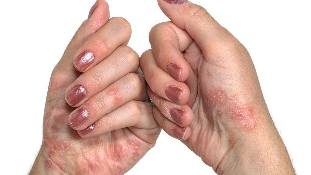 Psoriasis, causas emocionales de la psoriasis, biodescodificacion de la psoriasis, raices emocionales de la psoriasis,